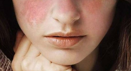 Fevereiro roxo: médico explica o que é lúpus