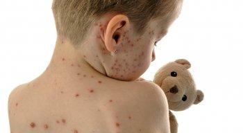 O sarampo é uma doença altamente contagiosa transmitida pela fala, tosse e espirro