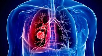 A doença afeta principalmente os pulmões