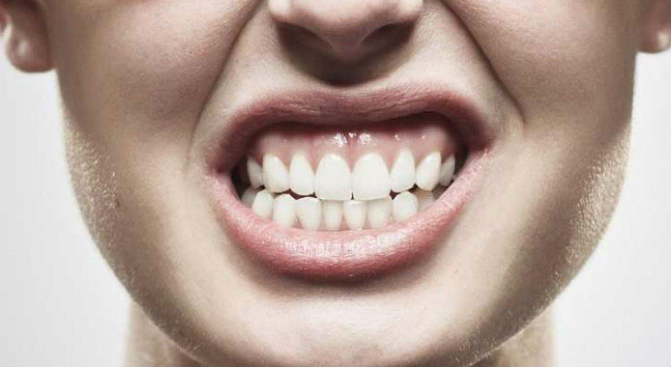 O tratamento de recuperação pode ser feito com uso de placas que protege os dentes.