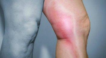 Causas e tratamentos da trombose
