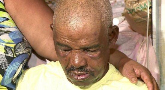 Idoso espancado no Pina recebe doações e tratamento dentário