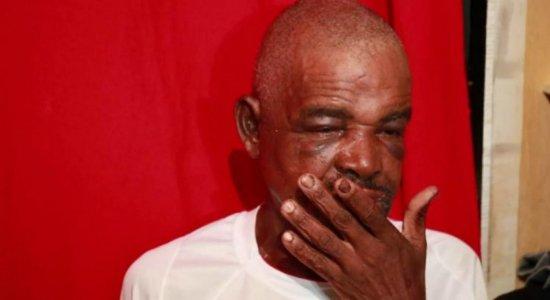 Dentista oferece ajuda para cuidar de dentes de idoso agredido no Pina