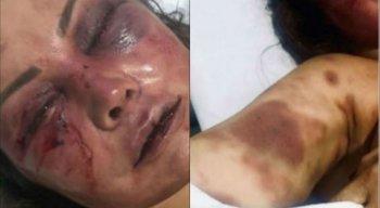 Mulher teve diversas fraturas no rosto