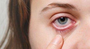 O contato dos olhos componentes tóxicos pode provocar conjuntivite, ardência, irritação, entre outros problemas