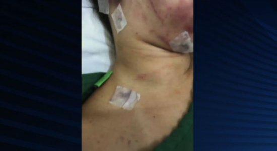 Estupro em Campina Grande: pernambucana levou 20 facadas