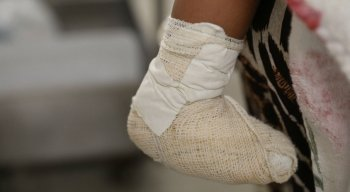 A criança de 1 ano e seis meses está internada desde terça-feira (25) no setor de queimados do HR.