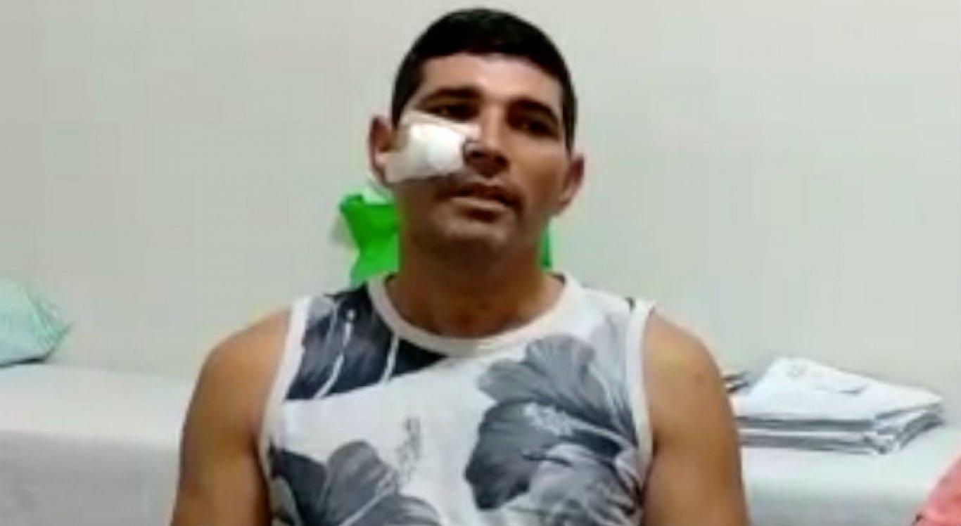 Sivonaldo Costa foi baleado no assalto a um mercadinho em Santa Cruz do Capibaribe