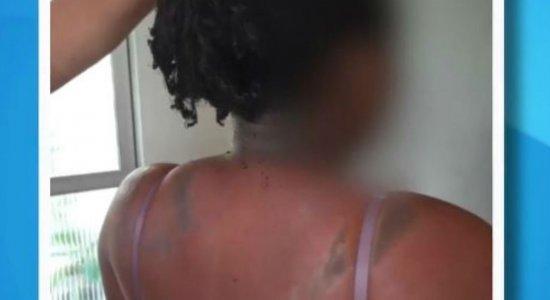 Dois homens encapuzados jogaram substância química na mulher no Recife
