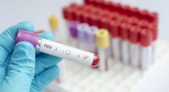 Estudo recruta brasileiros para testar eficácia de vacina contra o HIV