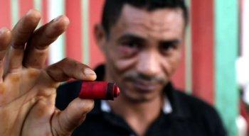 Cosme, caminhoneiro que estava no Ceasa, foi atingido no olho