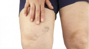 Durante o período de gestação os vasos da gestante se comprimem mais, gerando aumento do volume das pernas