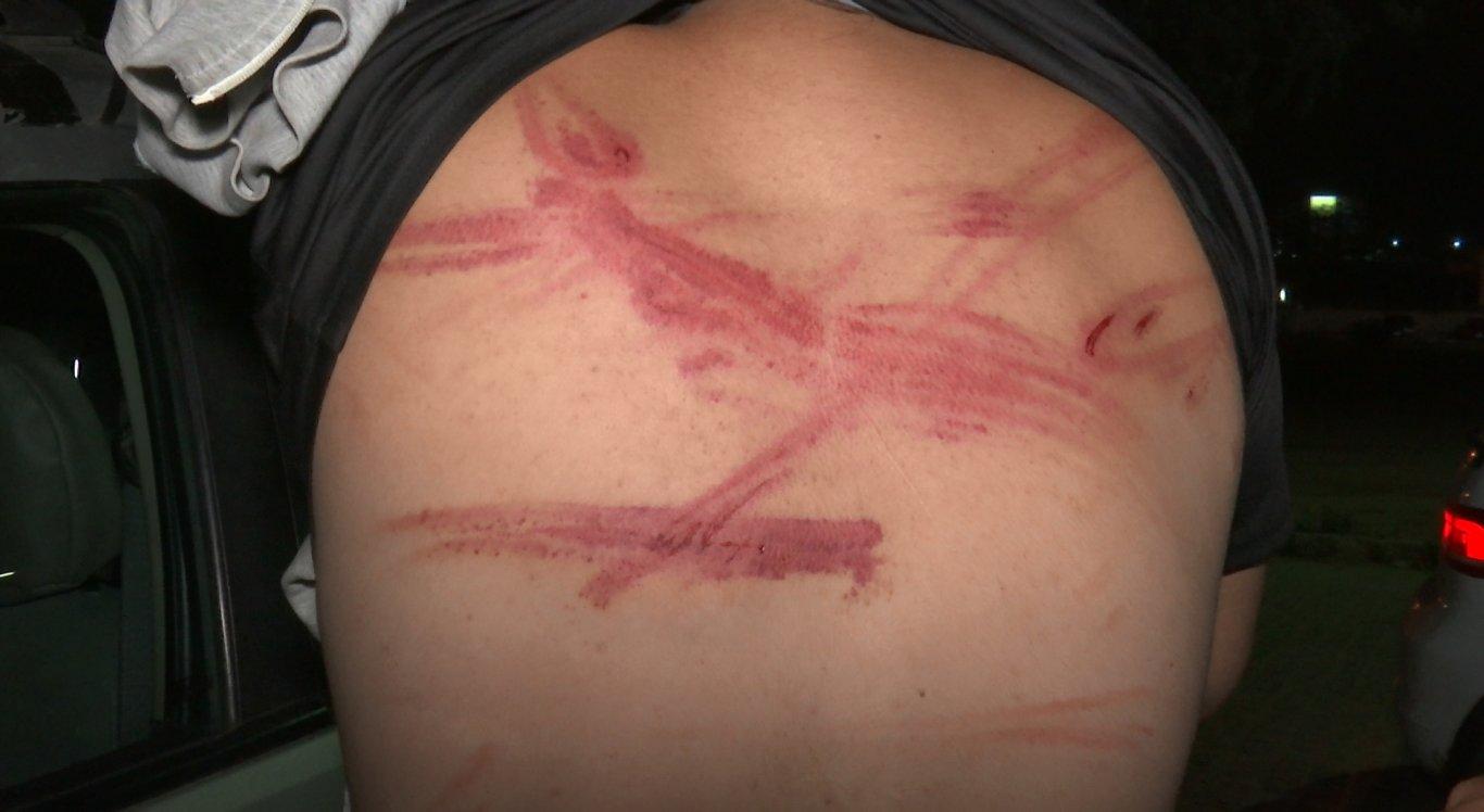Ferimentos são visíveis nas costas de uma das vítimas