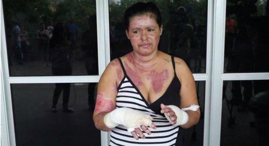 Manicure sofre queimaduras após explosão de micro-ondas em Garanhuns