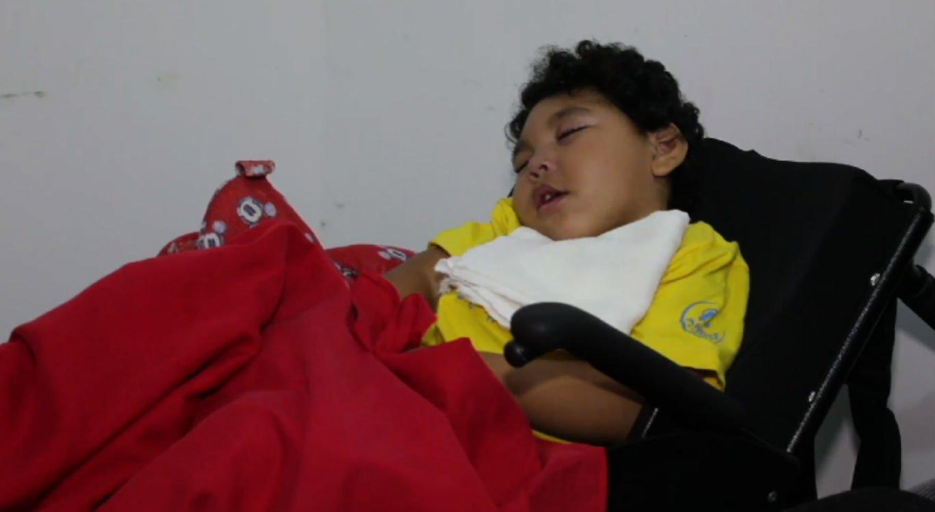 Crianças com microcefalia sofrem sem leite oferecido pela Prefeitura de Olinda