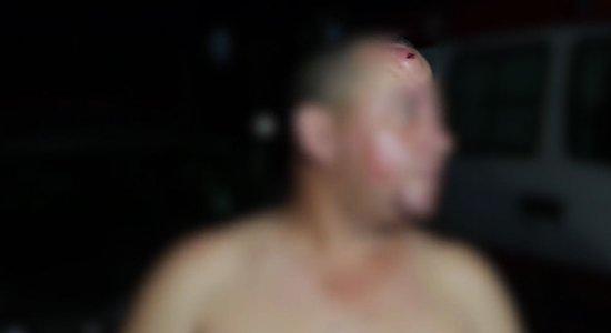 Segurança fica ferido após ser atingido por garrafa na cabeça