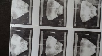 Imagens da ultrassom realizada pela jovem
