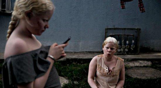Reencontros: irmãos albinos ainda enfrentam dificuldades