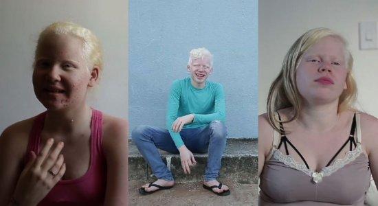 Especial Reencontros: irmãos albinos planejam realizar sonhos