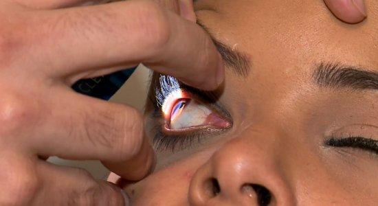 Visita ao oftalmologista pode prevenir câncer nos olhos