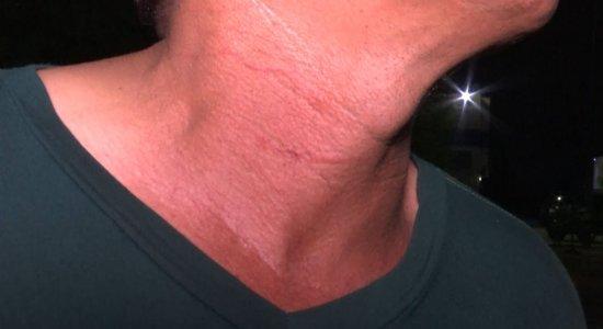 Suspeito feriu pescoço do mototaxista com faca