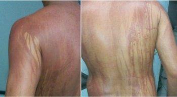 Um turista de Minas Gerais ficou com manchas semelhantes às de queimaduras depois de tomar banho em uma praia de Ilhéus, na Bahia