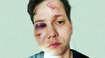 Karol Eller foi agredida na Barra da Tijuca, no Rio de Janeiro