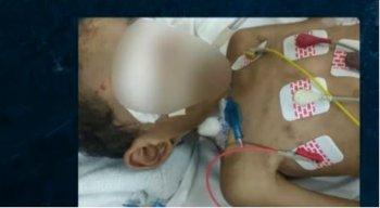 A polícia investiga se a morte do garoto foi em decorrência aos maus tratos causados por parentes