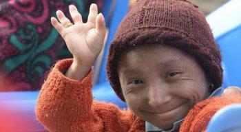 Khagendra Thapa Magar, o menor homem do mundo, morreu aos 27 anos