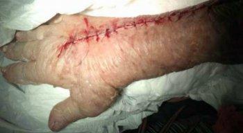 Foram 18 pontos para fechar o ferimento no braço da idosa