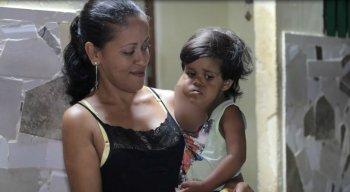 Pietro Dias da Silva tem uma doença chamada de higroma cístico