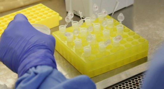 Coronavírus: Ministério da Saúde alerta para risco do uso de cloroquina sem indicação médica