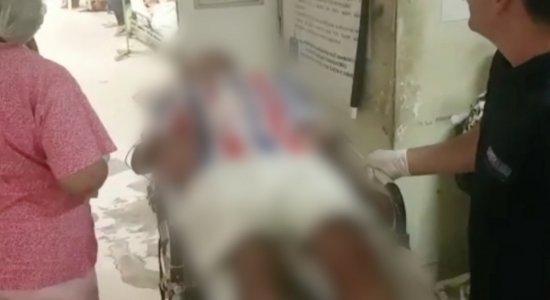Homem é internado no Hospital da Restauração após ser picado por cobra em Olinda