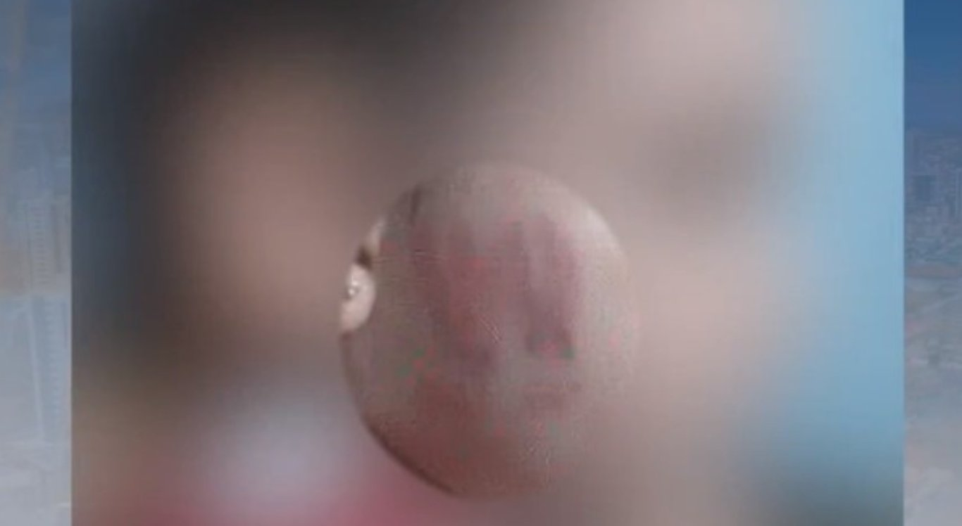 Criança foi encontrada com lesões pelo corpo