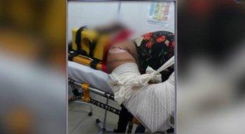 A mulher foi socorrida para o Hospital de Cupira, de onde foi transferida para o Hospital da Restauração