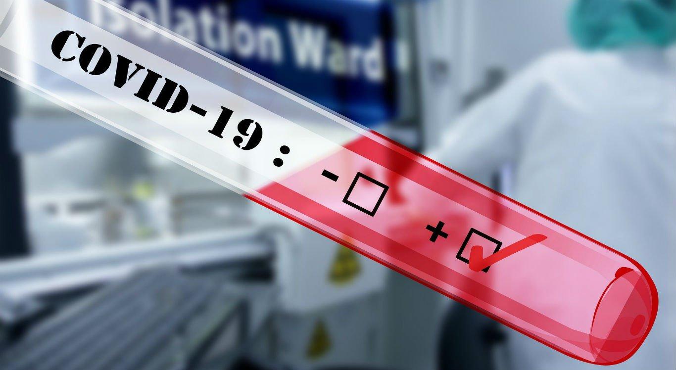 Casos confirmados do coronavírus estão em 223; mortes sobem para 30