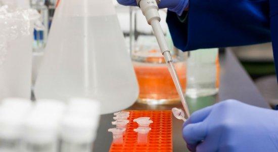 Proporção da população com anticorpos do novo coronavírus aumenta 53%