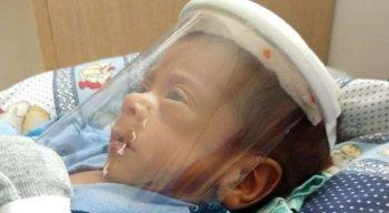 Equipamento protege recém-nascidos do novo coronavírus