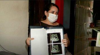 Wilma Balbino, de 37 anos, descobriu que está grávida de quadrigêmeos