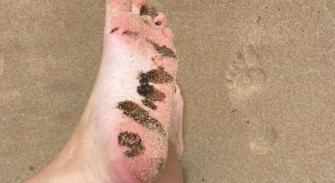 Pessoas denunciaram o reaparecimento de óleo em praias do litoral pernambucano