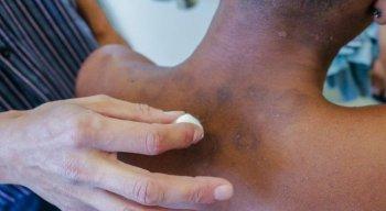 A hanseníase é uma doença infecciosa crônica, causada por uma bactéria, que atinge principalmente a pele e os nervos periféricos
