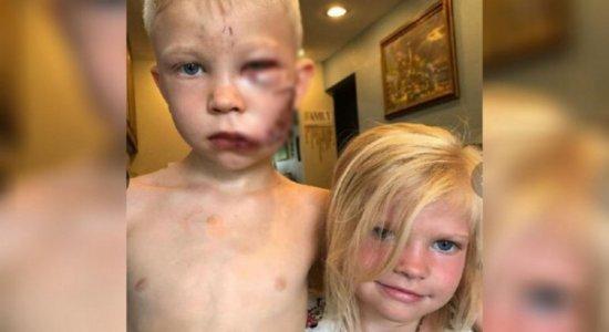Menino leva 90 pontos no rosto após salvar irmã de ataque de cachorro