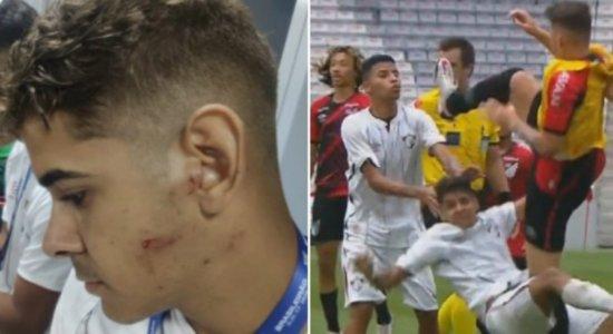 Em final do Brasileiro sub-17, atacante do Fluminense é agredido covardemente por jogador do Athletico-PR