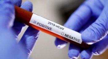 Estado totaliza 9.459 mortes pelo novo coronavírus