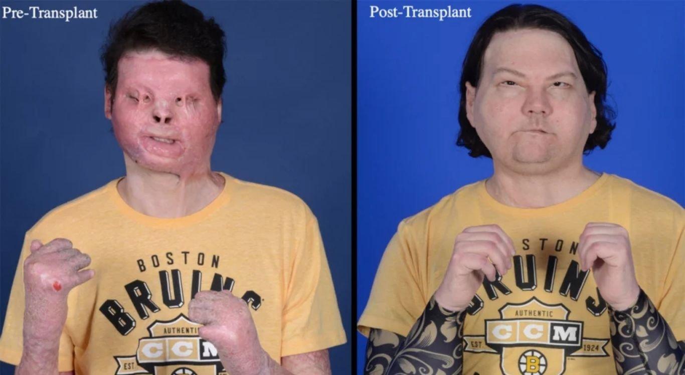 oe DiMeo fez o primeiro transplante duplo de rosto e mão após sofrer acidente e ter 80% do corpo queimado