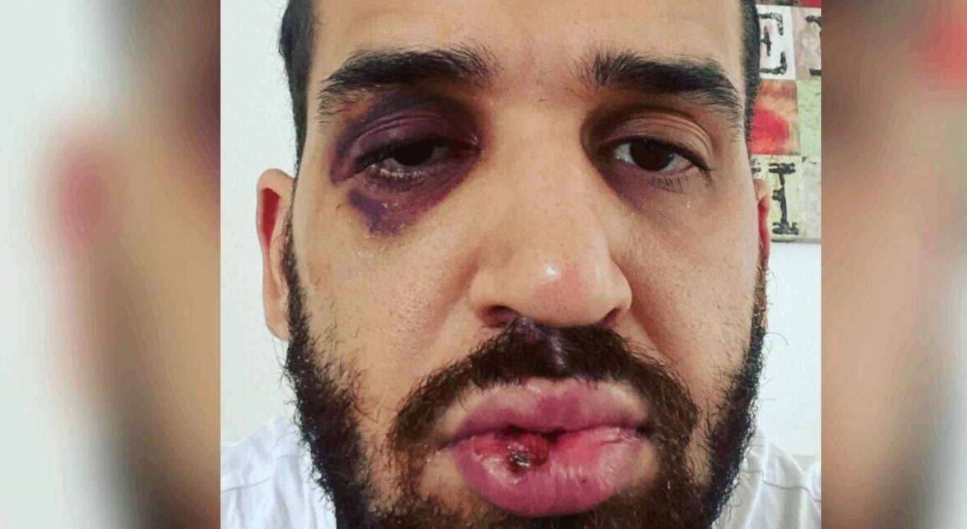 José Eduardo Mainart Panini foi agredido por familiar ao alertar sobre os riscos da Covid-19.