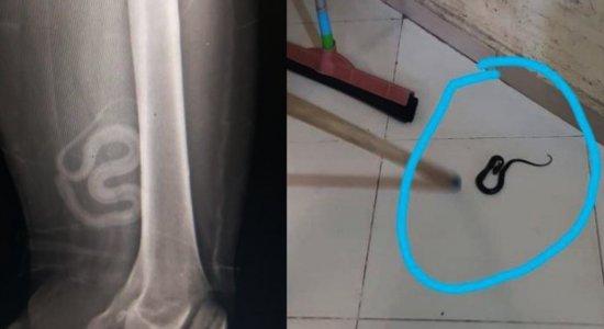 Cobra é encontrada dentro de roupa de foragido baleado durante fuga