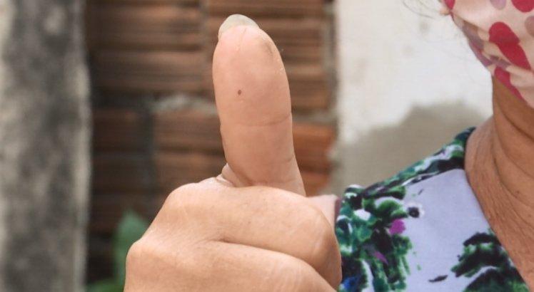 A dona de casa Maria Zefinha é diabética e ficou com o dedo inchado após ataque de abelhas
