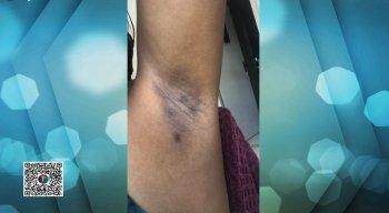 A denúncia de lesão corporal já está sendo investigada pela polícia.