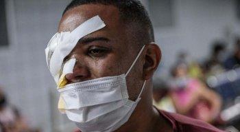 Vítimas devem perder a visão após agressão policial